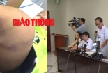 Sức khỏe bé 1 tuổi nghi bị bạo hành ở Hà Nội thế nào?