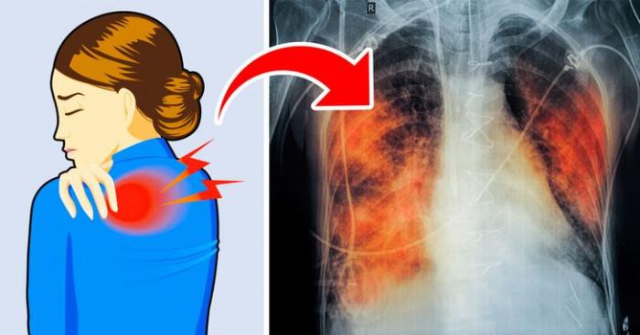 """5 dấu hiệu cho thấy hai lá phổi đang """"cầu cứu"""" 1"""