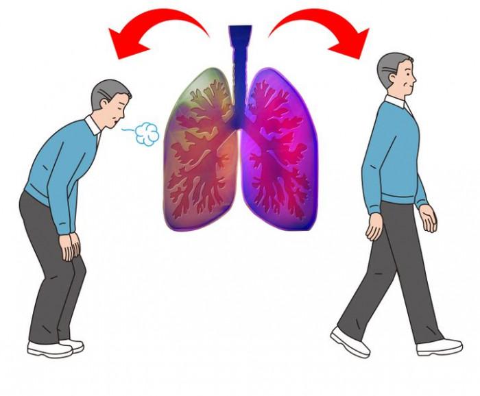 """5 dấu hiệu cho thấy hai lá phổi đang """"cầu cứu"""" 3"""